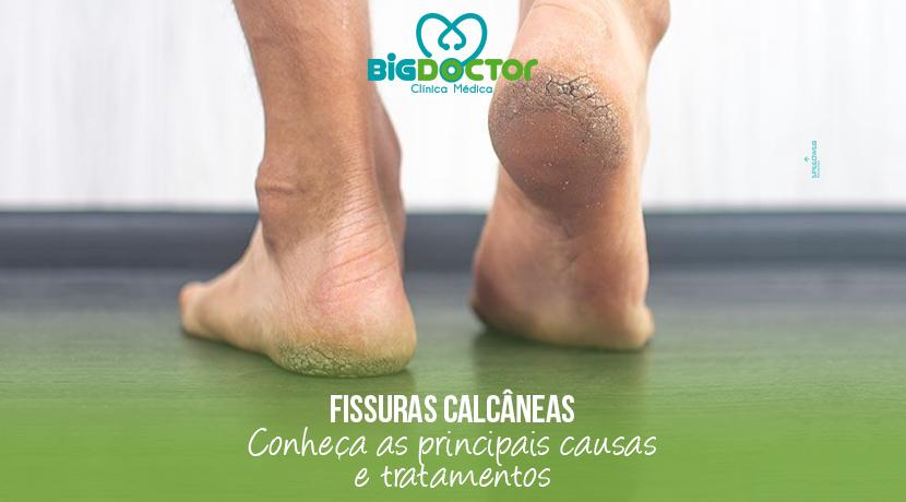 Fissuras calcâneas: conheça as principais causas e tratamentos