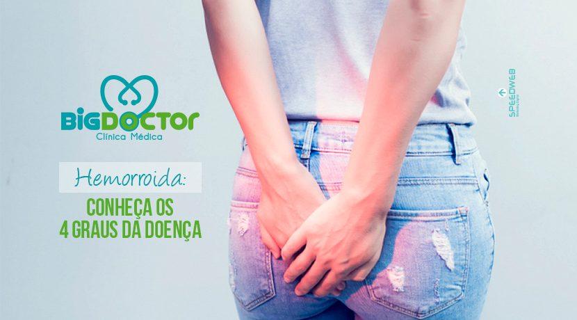 Hemorroida: conheça os 4 graus da doença