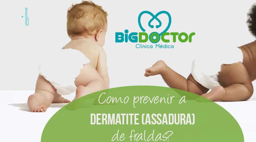 Como prevenir a dermatite (assaduras0 de fraldas?